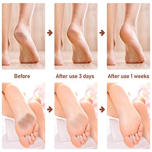 Callus Remover for Feet with Built-in Vacuum Rechargeable Electric Feet Callus Pedicure Tools for Dead Skin with 3 Coarse Roller Heads and 2 Level Adjustable Speeds.
